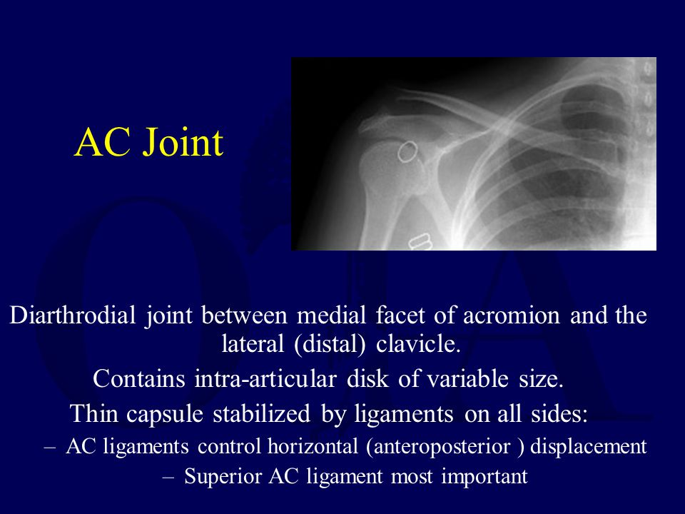 AC Joint Diarthrodial joint between medial facet of acromion and the lateral (distal) clavicle. Contains intra-articular disk of variable size. Thin c