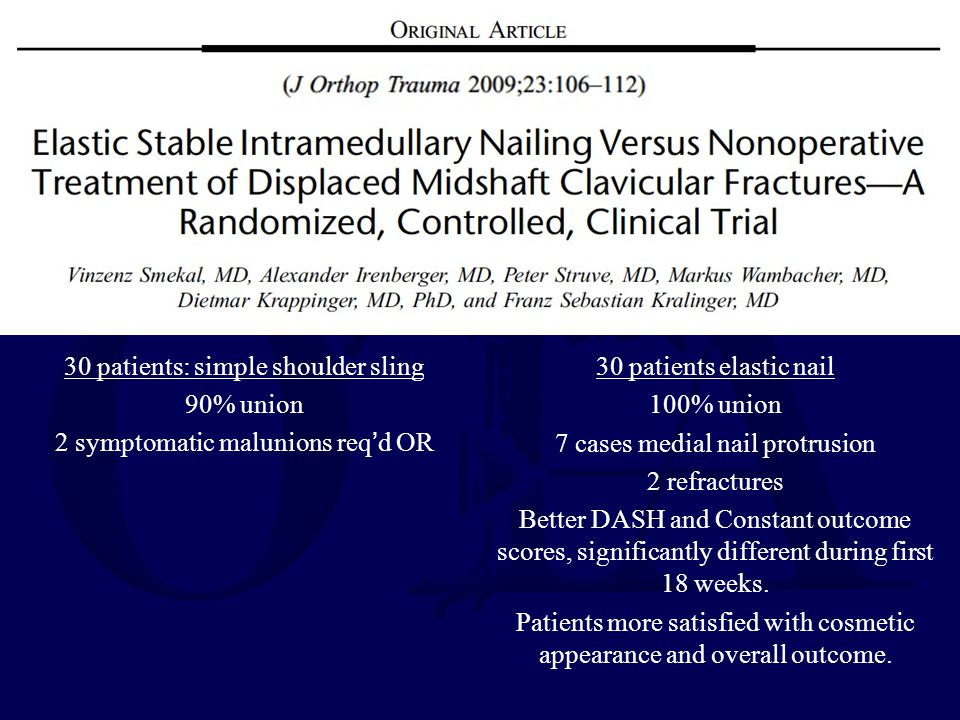 30 patients: simple shoulder sling 90% union 2 symptomatic malunions req'd OR 30 patients elastic nail 100% union 7 cases medial nail protrusion 2 ref
