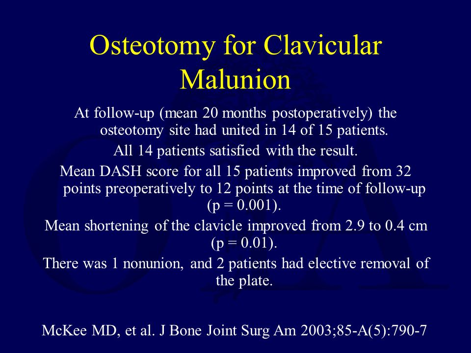 McKee MD, et al. J Bone Joint Surg Am 2003;85-A(5):790-7 Osteotomy for Clavicular Malunion At follow-up (mean 20 months postoperatively) the osteotomy