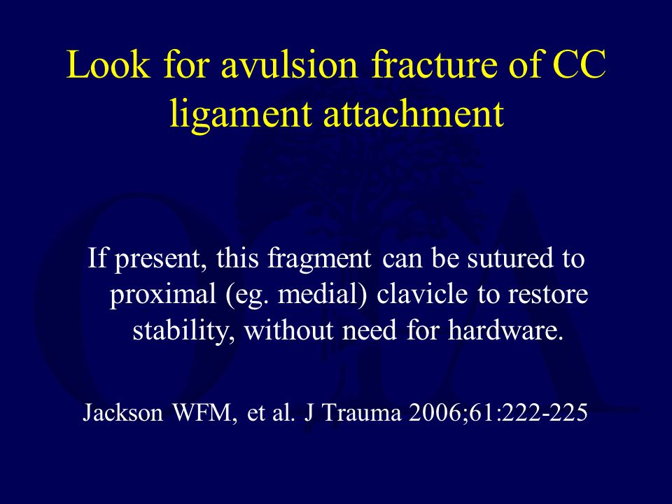 Look for avulsion fracture of CC ligament attachment If present, this fragment can be sutured to proximal (eg. medial) clavicle to restore stability,