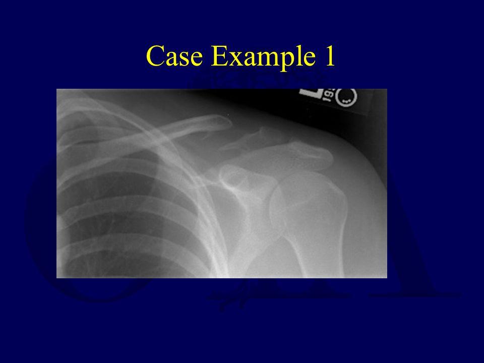 Case Example 1
