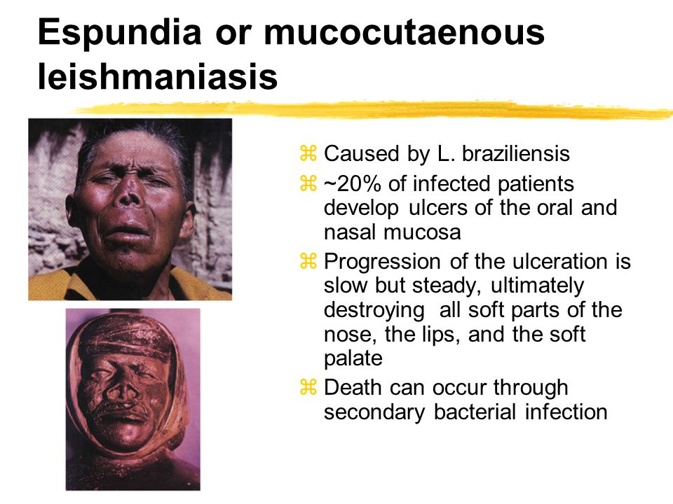 Espundia or mucocutaenous leishmaniasis zCaused by L. braziliensis z~20% of infected patients develop ulcers of the oral and nasal mucosa zProgression