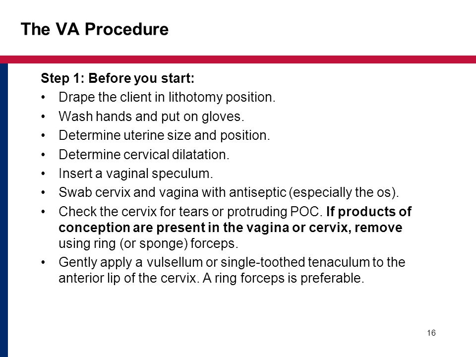 The VA Procedure Step 1: Before you start: Drape the client in lithotomy position. Wash hands and put on gloves. Determine uterine size and position.