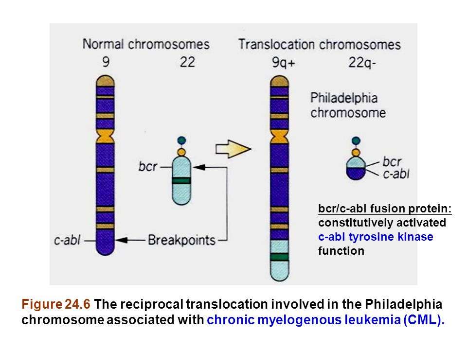 Figure 24.6 The reciprocal translocation involved in the Philadelphia chromosome associated with chronic myelogenous leukemia (CML).