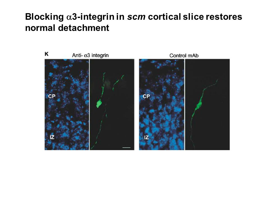Blocking  3-integrin in scm cortical slice restores normal detachment