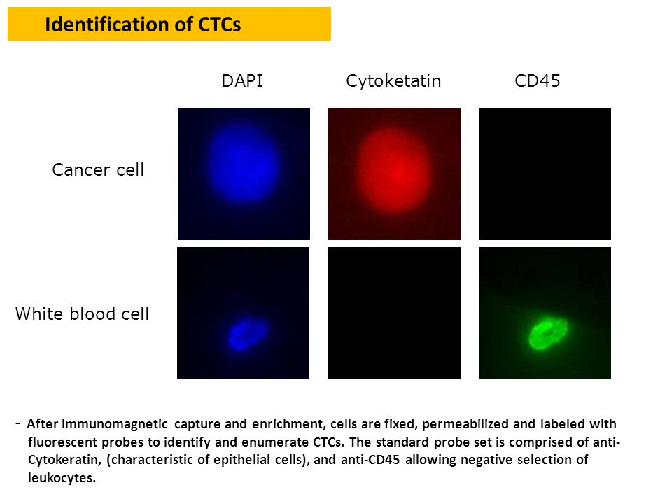 Identification of CTCs - After immunomagnetic capture and enrichment, cells are fixed, permeabilized and labeled with fluorescent probes to identify and enumerate CTCs.