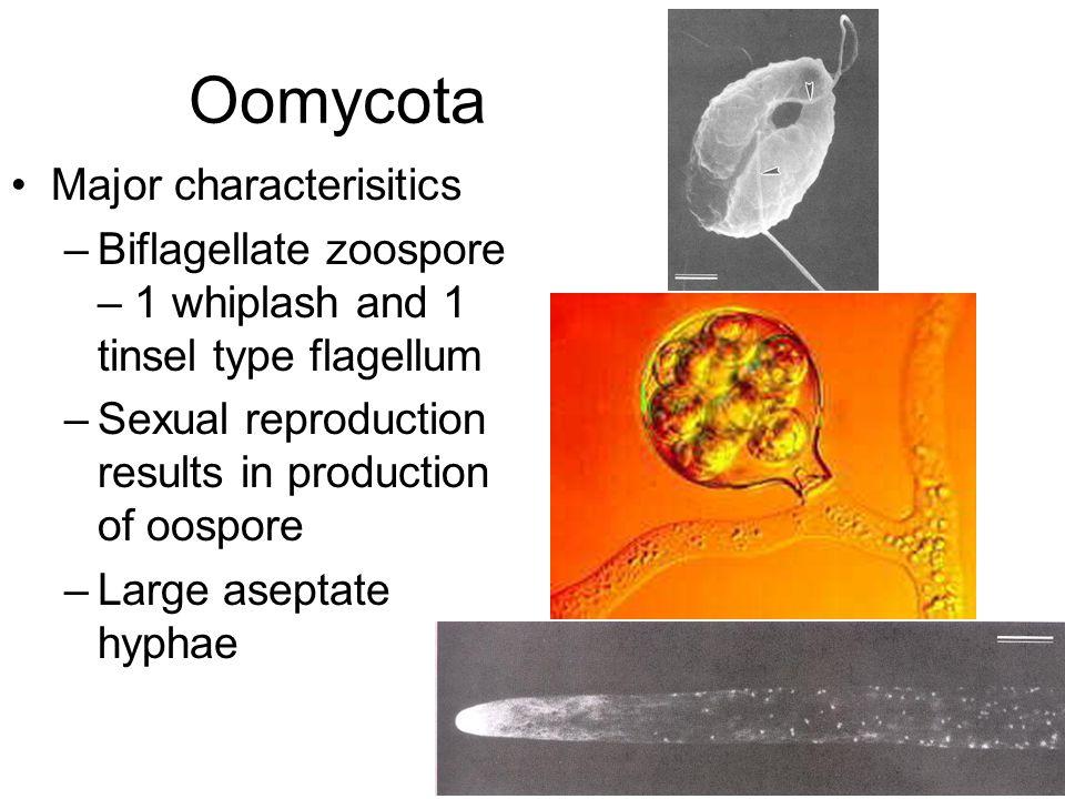 Zoospores Achlya