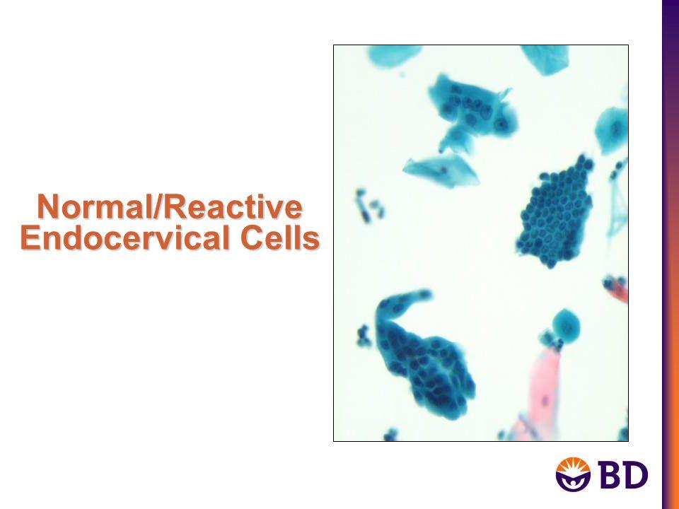 Normal/Reactive Endocervical Cells