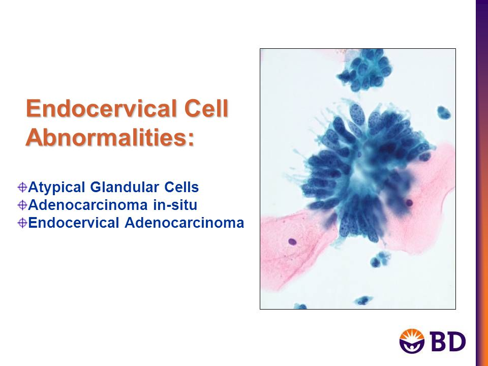 Endocervical Cell Abnormalities: Atypical Glandular Cells Adenocarcinoma in-situ Endocervical Adenocarcinoma