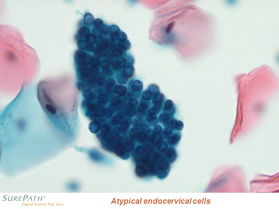 AIS Atypical endocervical cells