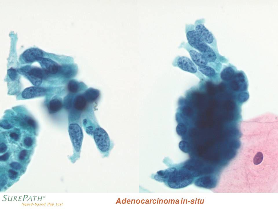 L Adenocarcinoma in-situ