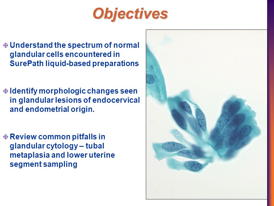 Objectives Understand the spectrum of normal glandular cells encountered in SurePath liquid-based preparations Identify morphologic changes seen in glandular lesions of endocervical and endometrial origin.