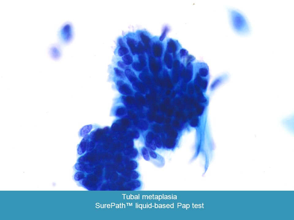 Tubal metaplasia SurePath™ liquid-based Pap test