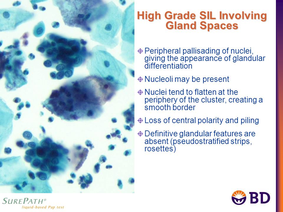 Peripheral pallisading of nuclei, giving the appearance of glandular differentiation Nucleoli may be present Nuclei tend to flatten at the periphery of the cluster, creating a smooth border Loss of central polarity and piling Definitive glandular features are absent (pseudostratified strips, rosettes) High Grade SIL Involving Gland Spaces