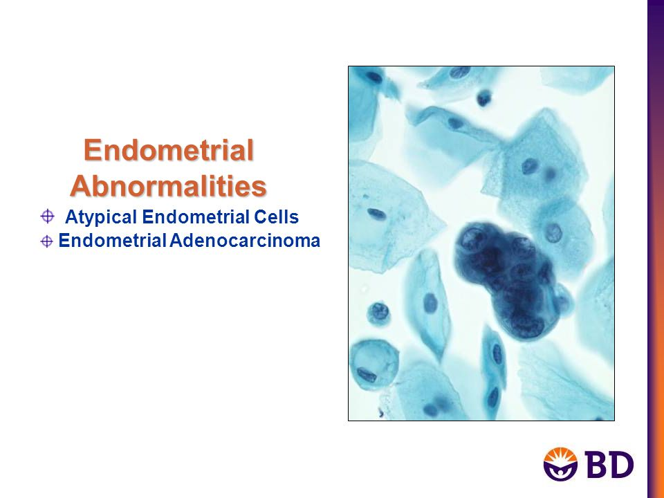 Endometrial Abnormalities Atypical Endometrial Cells Endometrial Adenocarcinoma
