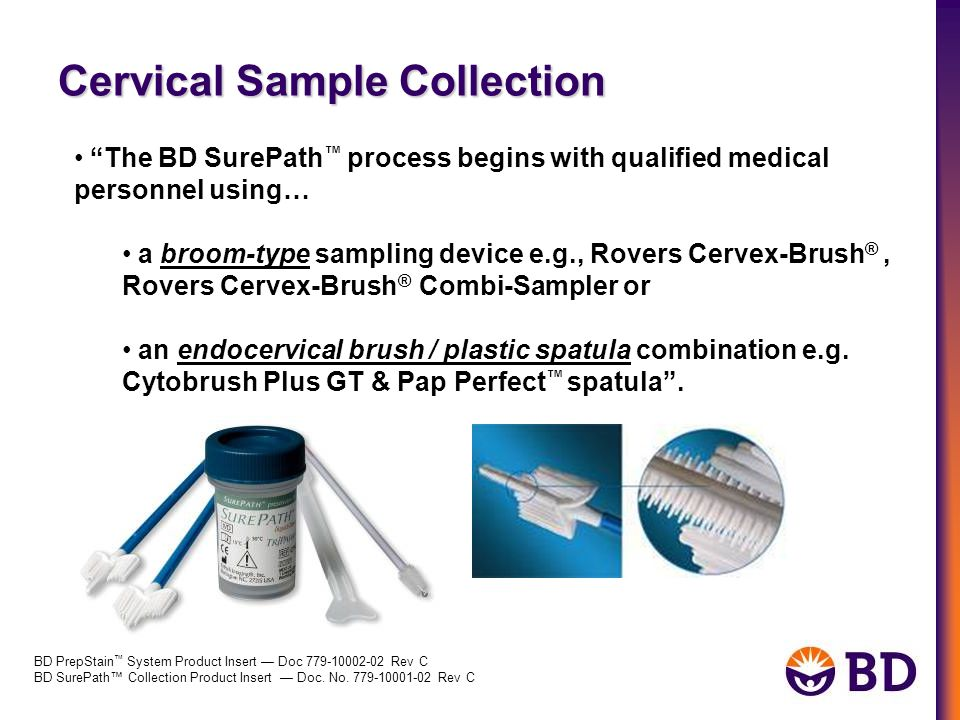 Cervical Sample Collection BD PrepStain ™ System Product Insert — Doc 779-10002-02 Rev C BD SurePath™ Collection Product Insert — Doc. No. 779-10001-0