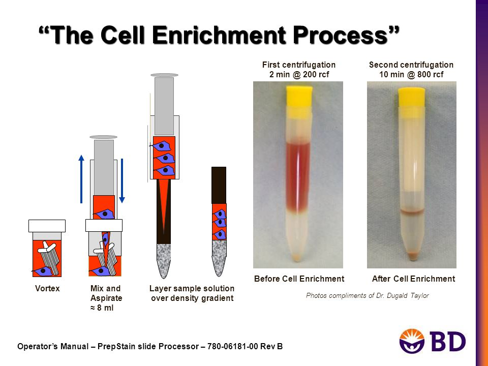 The Cell Enrichment Process Before Cell EnrichmentAfter Cell Enrichment Photos compliments of Dr.