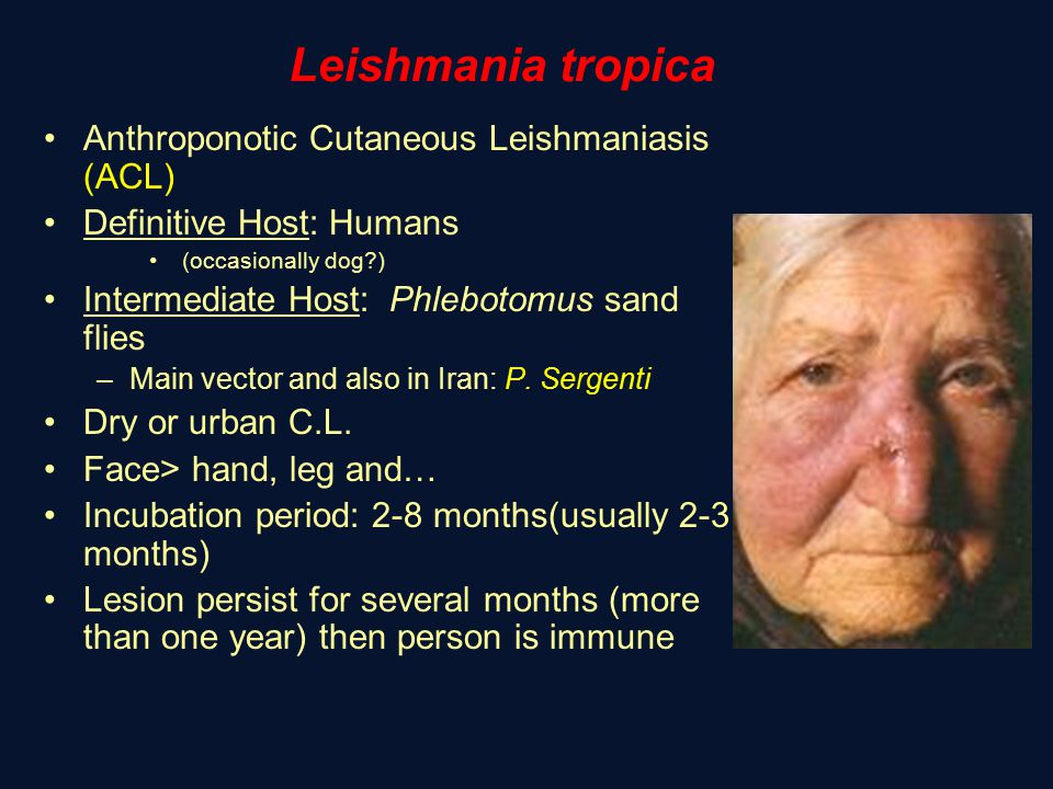 Leishmania tropica Anthroponotic Cutaneous Leishmaniasis (ACL) Definitive Host: Humans (occasionally dog?) Intermediate Host: Phlebotomus sand flies –Main vector and also in Iran: P.