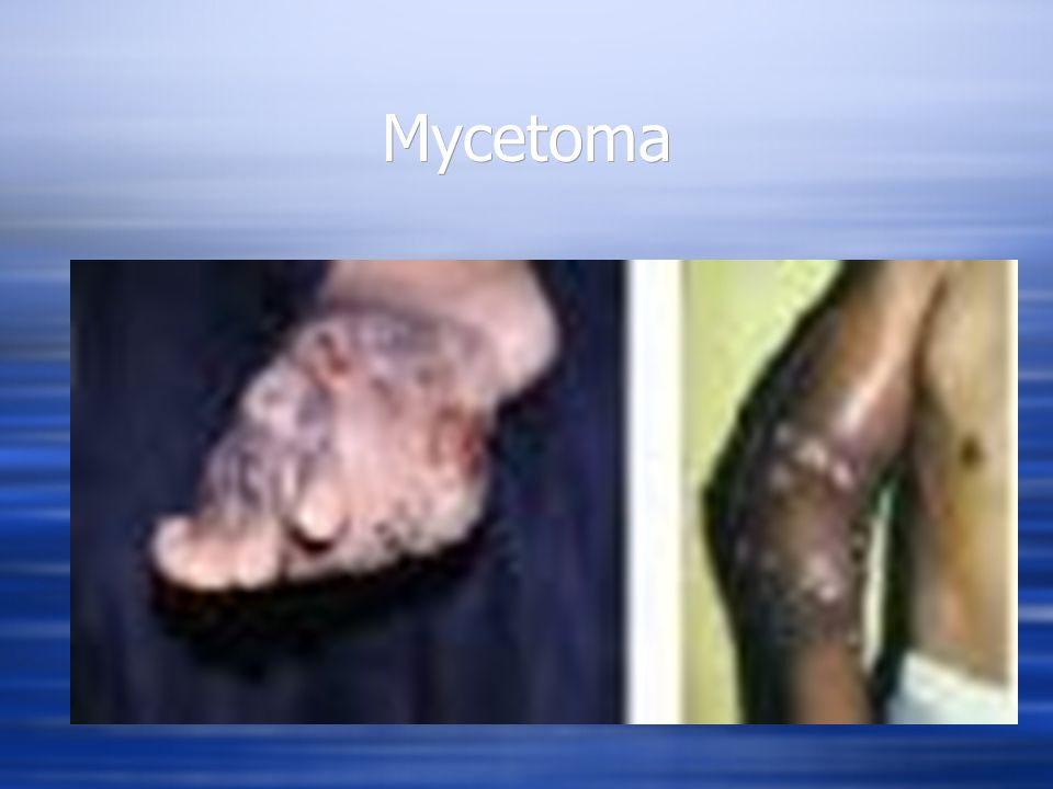 Mycology  Cutaneous mycoses (ringworm) – are fungal infections of the hair, epidermis, and nails  Are caused by fungi known as dermatophytes (dermatomycosis) which secrete the enzyme keratinase which digests keratin, a protein found in hair, skin, and nails.