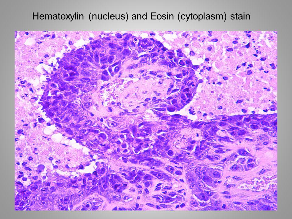 Hematoxylin (nucleus) and Eosin (cytoplasm) stain
