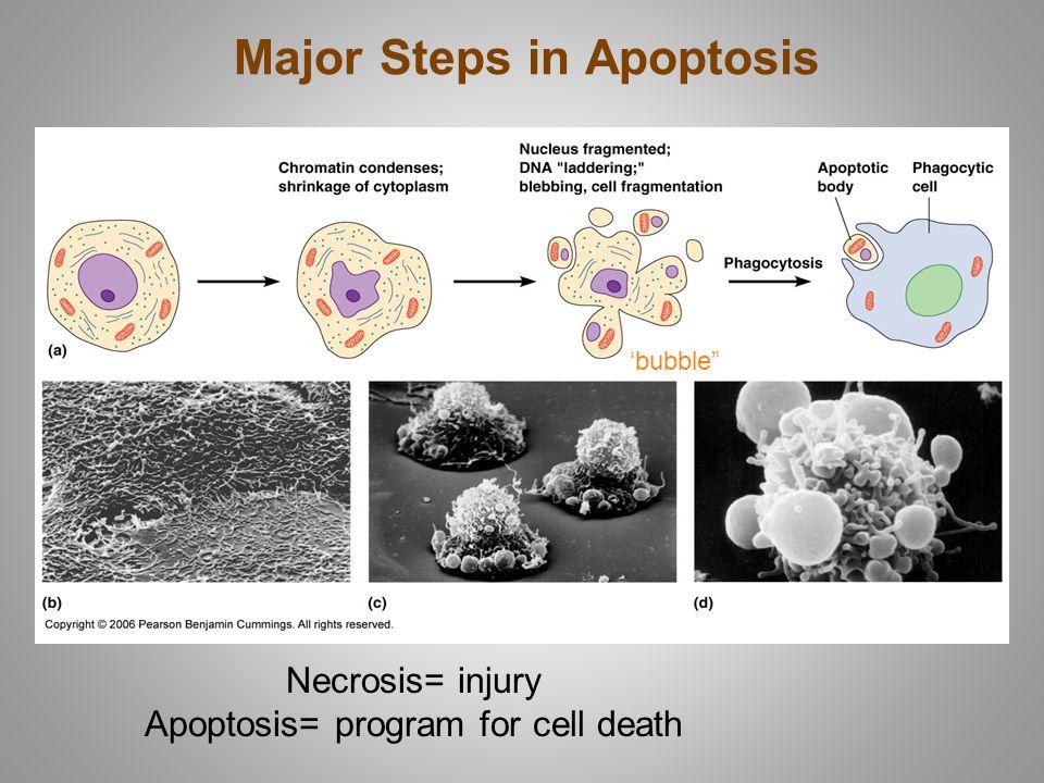 "Major Steps in Apoptosis Necrosis= injury Apoptosis= program for cell death 'bubble"""