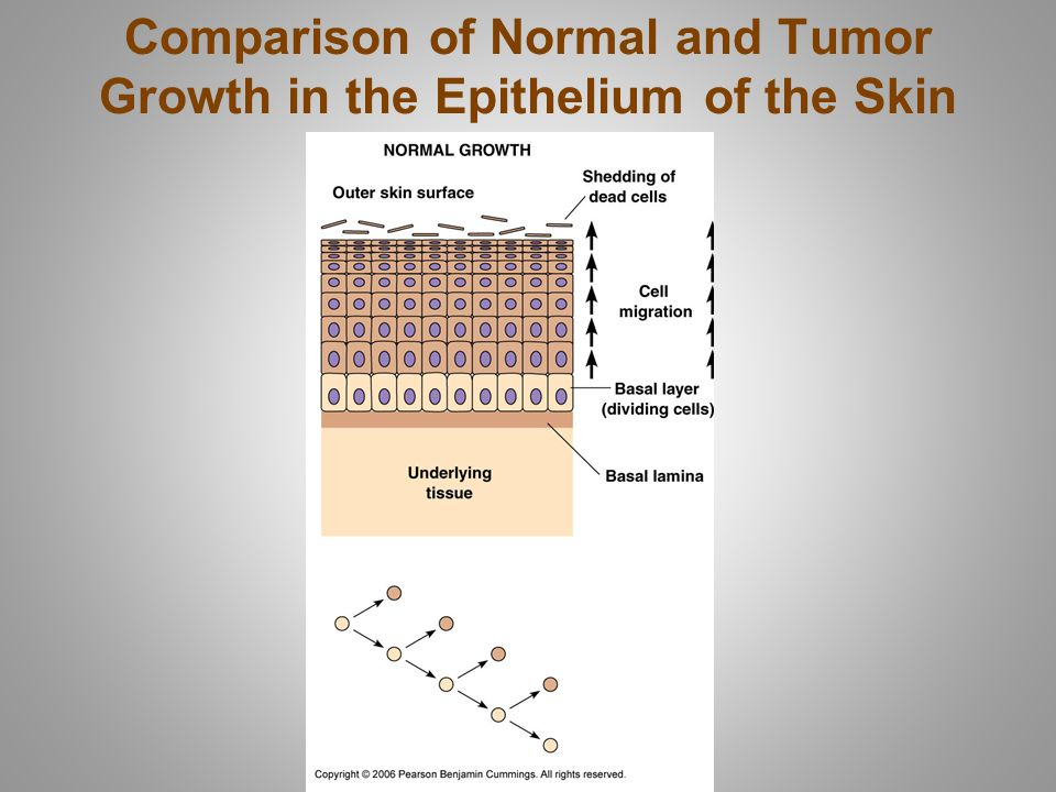 Comparison of Normal and Tumor Growth in the Epithelium of the Skin