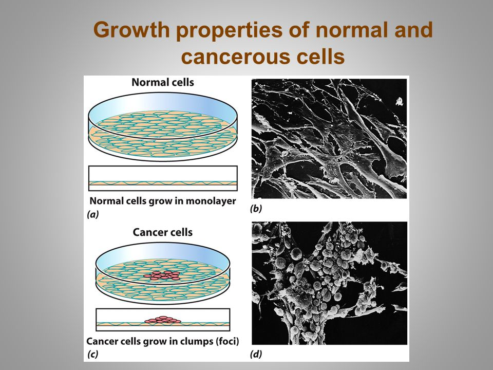 Growth properties of normal and cancerous cells
