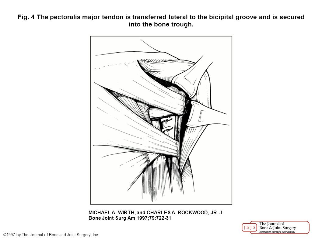Fig. 4 The pectoralis major tendon is transferred lateral to the bicipital groove and is secured into the bone trough. MICHAEL A. WIRTH, and CHARLES A