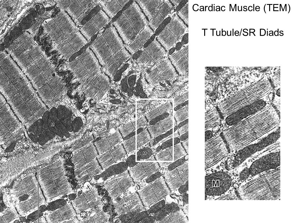T Tubule/SR Diads Cardiac Muscle (TEM)