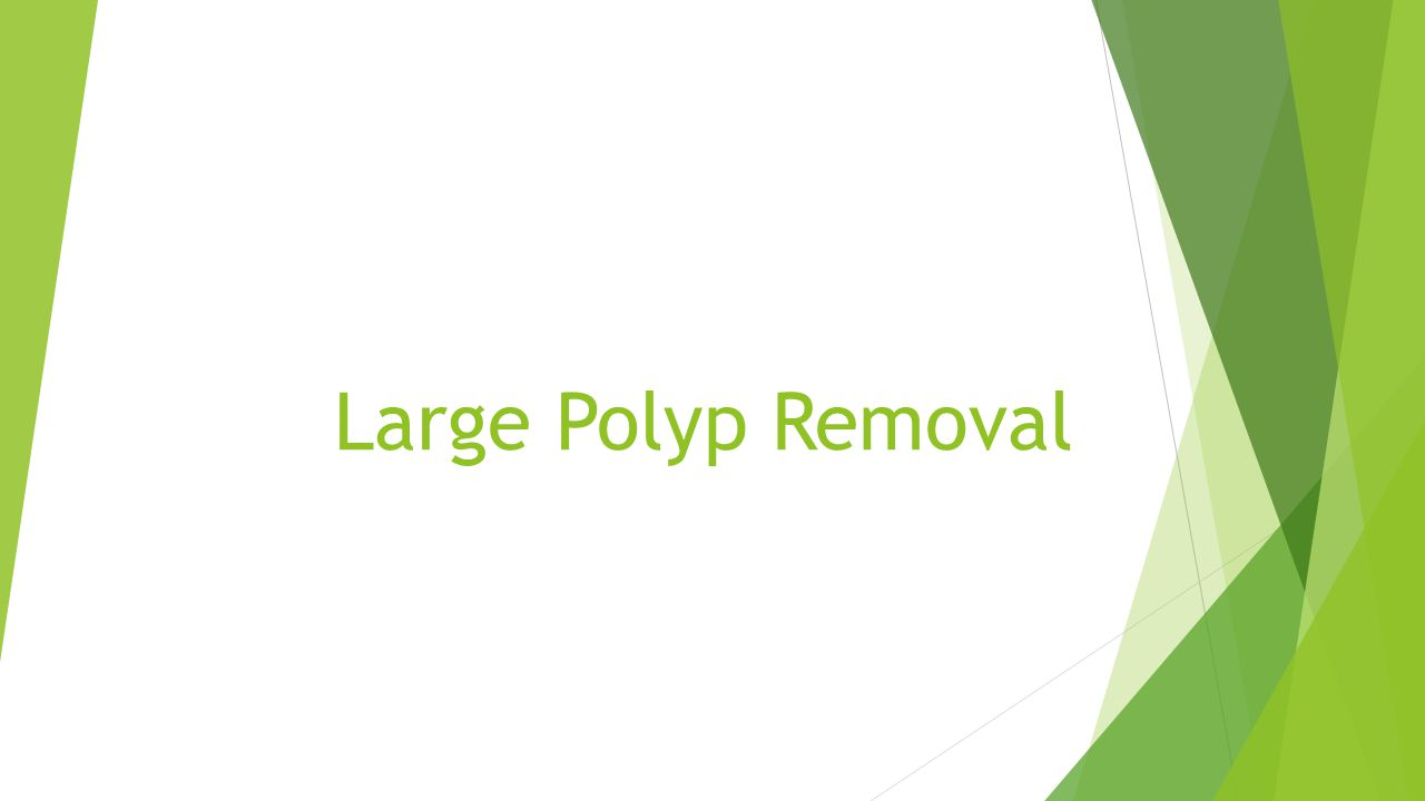 Large Polyp Removal