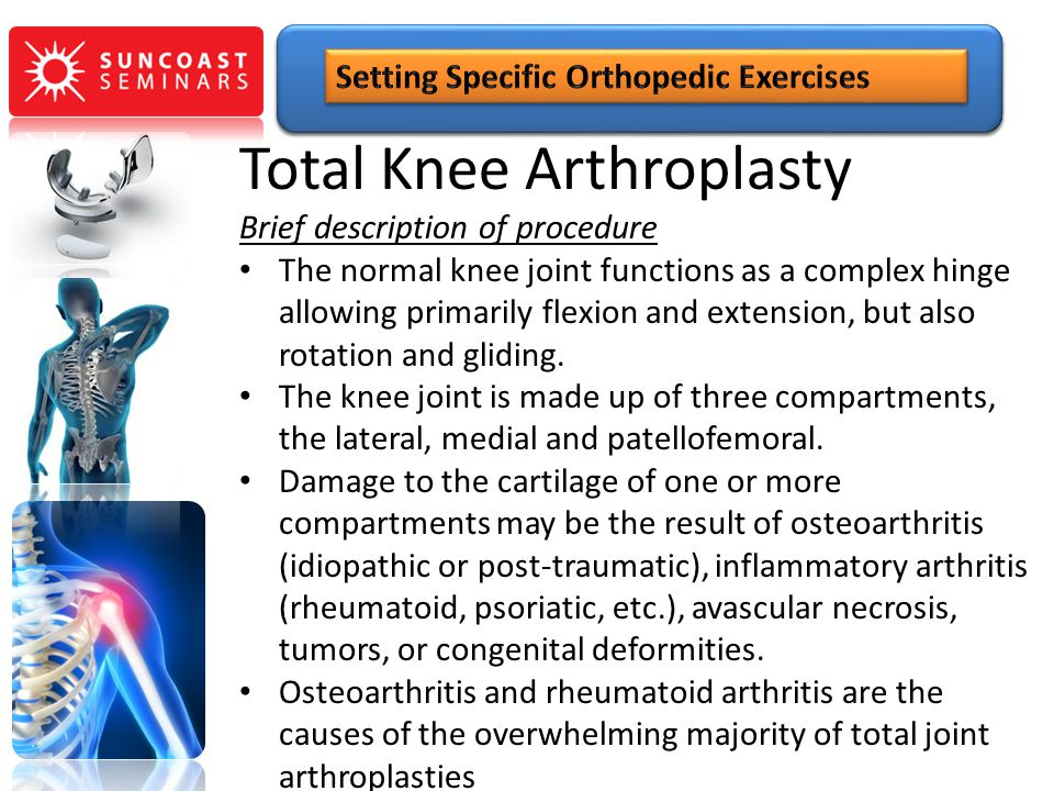 Total Knee Arthroplasty Brief description of procedure The normal knee joint functions as a complex hinge allowing primarily flexion and extension, bu