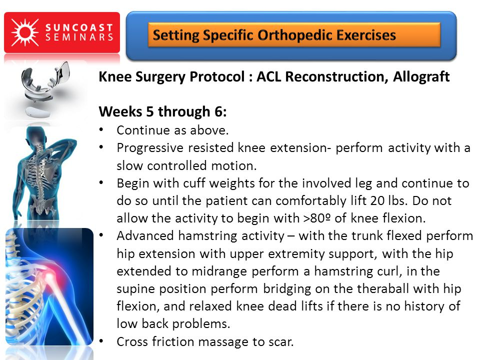 Knee Surgery Protocol : ACL Reconstruction, Allograft Weeks 5 through 6: Continue as above. Progressive resisted knee extension- perform activity with