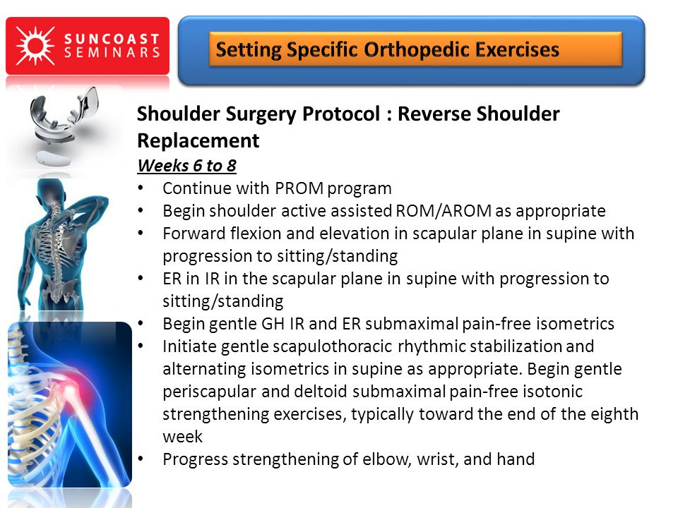 Shoulder Surgery Protocol : Reverse Shoulder Replacement Weeks 6 to 8 Continue with PROM program Begin shoulder active assisted ROM/AROM as appropriat