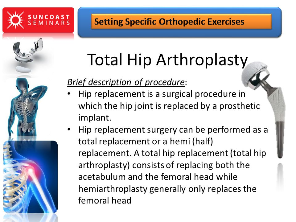 Total Hip Arthroplasty Brief description of procedure: Hip replacement is a surgical procedure in which the hip joint is replaced by a prosthetic impl