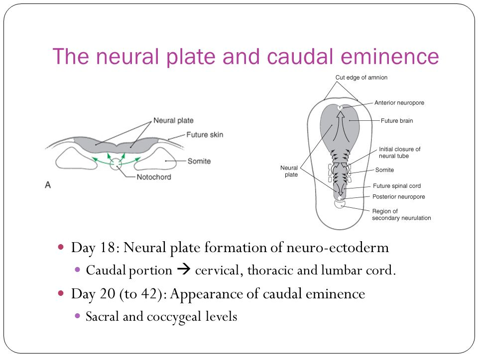 The neural plate and caudal eminence Day 18: Neural plate formation of neuro-ectoderm Caudal portion  cervical, thoracic and lumbar cord.