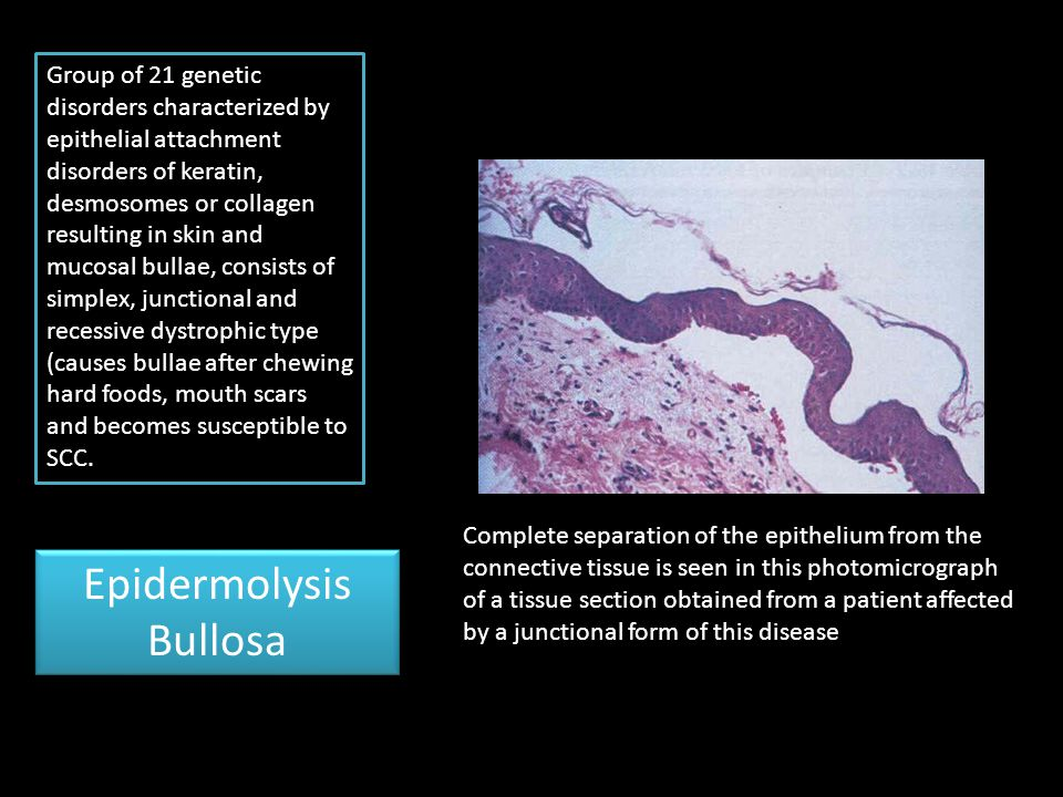 Epidermolysis Bullosa Complete separation of the epithelium from the connective tissue is seen in this photomicrograph of a tissue section obtained fr