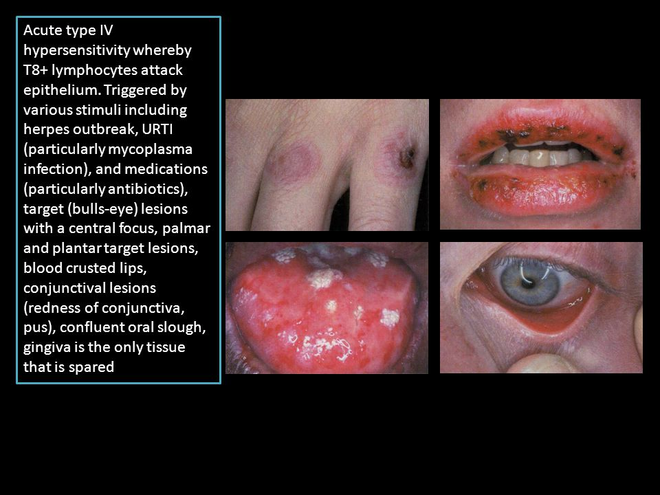 Acute type IV hypersensitivity whereby T8+ lymphocytes attack epithelium. Triggered by various stimuli including herpes outbreak, URTI (particularly m