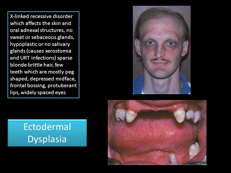 X-linked recessive disorder which affects the skin and oral adnexal structures, no sweat or sebaceous glands, hypoplastic or no salivary glands (cause