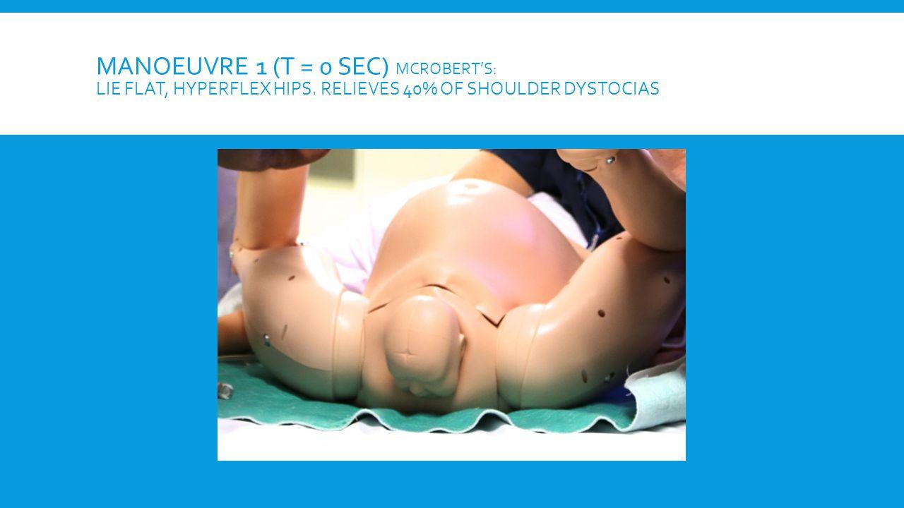 MANOEUVRE 1 (T = 0 SEC) MCROBERT'S: LIE FLAT, HYPERFLEX HIPS. RELIEVES 40% OF SHOULDER DYSTOCIAS
