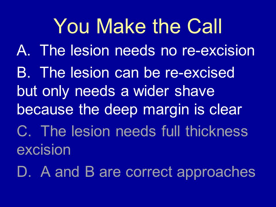 You Make the Call A. The lesion needs no re-excision B.
