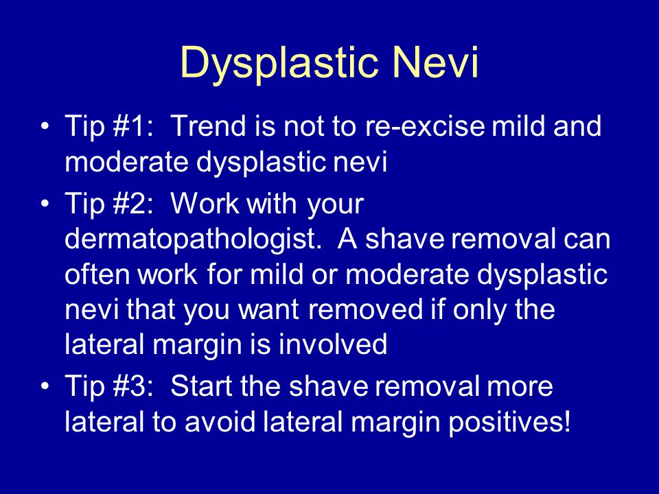Dysplastic Nevi Tip #1: Trend is not to re-excise mild and moderate dysplastic nevi Tip #2: Work with your dermatopathologist.
