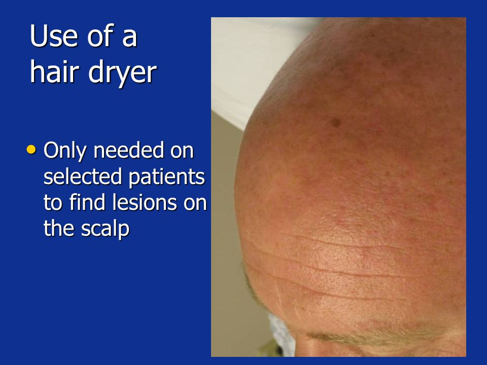 Use of a hair dryer Only needed on selected patients to find lesions on the scalp Only needed on selected patients to find lesions on the scalp