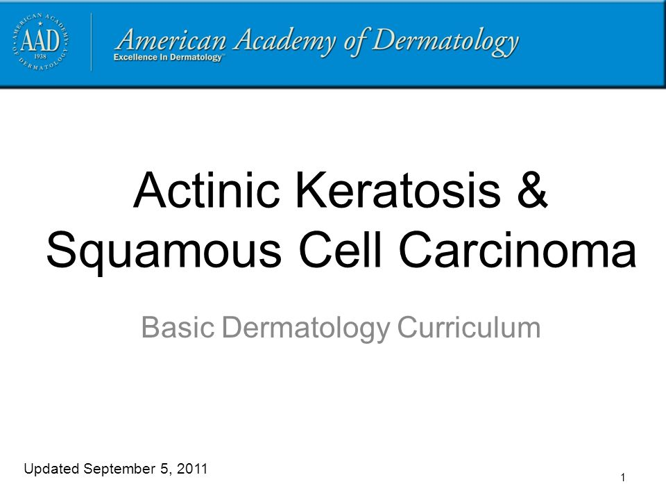 Actinic Keratosis & Squamous Cell Carcinoma Basic Dermatology Curriculum Updated September 5, 2011 1