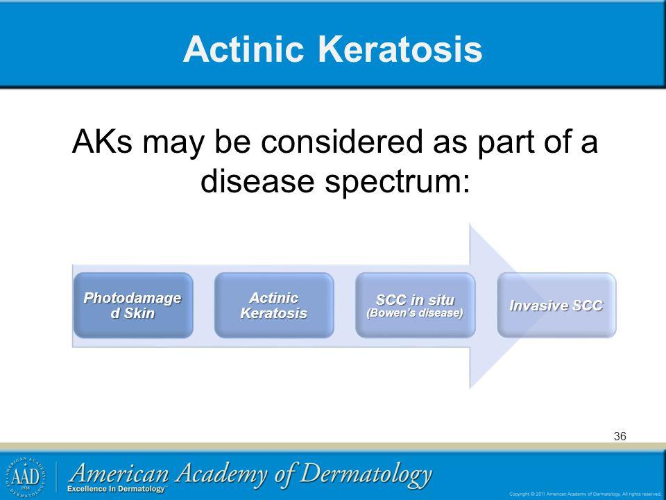 Actinic Keratosis AKs may be considered as part of a disease spectrum: 36 Photodamage d Skin Actinic Keratosis SCC in situ (Bowen's disease) Invasive