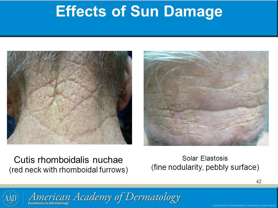 Effects of Sun Damage Solar Elastosis (fine nodularity, pebbly surface) Cutis rhomboidalis nuchae (red neck with rhomboidal furrows) 42