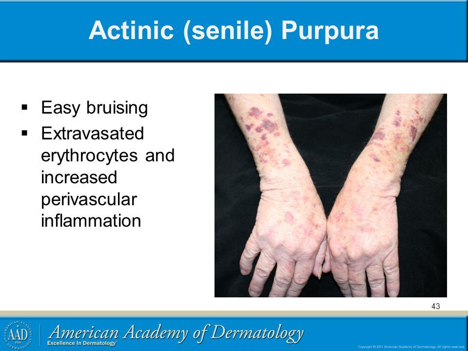Actinic (senile) Purpura  Easy bruising  Extravasated erythrocytes and increased perivascular inflammation 43