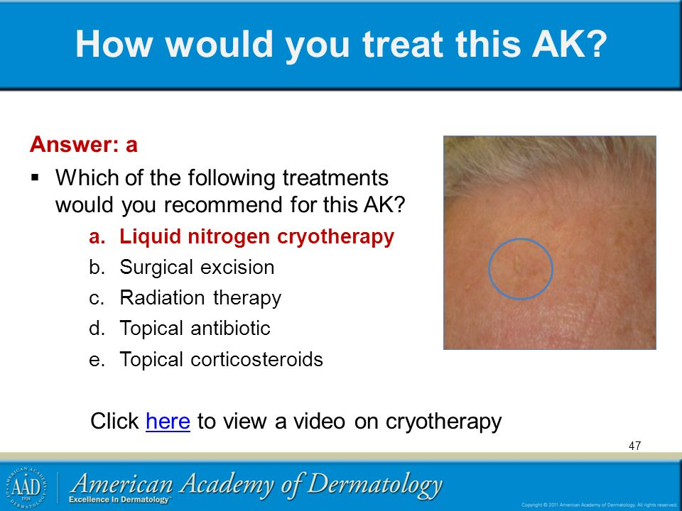 How would you treat this AK? Answer: a  Which of the following treatments would you recommend for this AK? a.Liquid nitrogen cryotherapy b.Surgical e