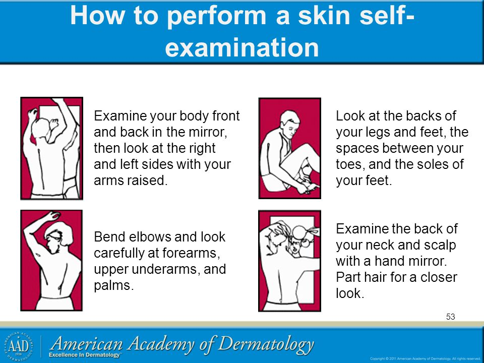 How to perform a skin self- examination 53 Examine your body front and back in the mirror, then look at the right and left sides with your arms raised