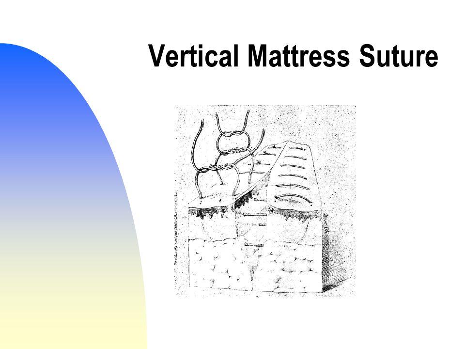 Vertical Mattress Suture