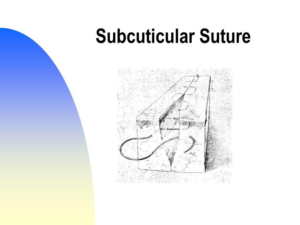 Subcuticular Suture
